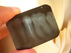 """""""dental x-ray"""""""